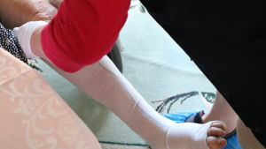 En hemvårdare lägger på en stödstrumpa på en klients vänsta fot.