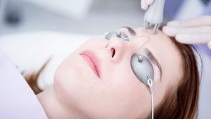 En kvinna som blir behandlad med koldioxidlaser. Hon ligger på en brits och har på sig små solglasögon. Lasern ser ut som ett vitt rör.