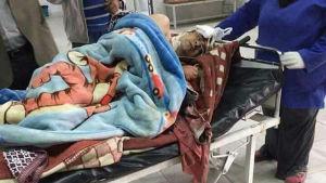 Person som skadades i en islamistattack mot en moské på Sinaihalvön i Egypten i november 2017
