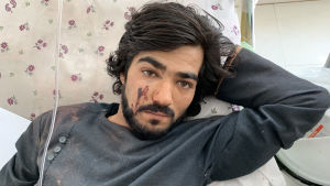 En man som skadats vårdas på sjukhus i närheten av Kabul i Afghanistan. Mannen skadades efter att en bilmomb detonerat vid ett valmöte  i utankanten av Kabul.