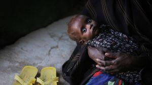Undernärt barn i Somalia