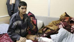 Ahmed Dadu från Syrien har förlorat en arm och ett ben i flygräder.