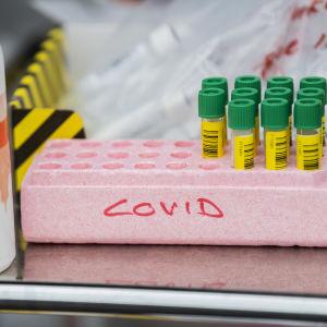 Provrör för coronavirustestning.