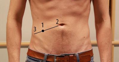 ont i högra delen av magen