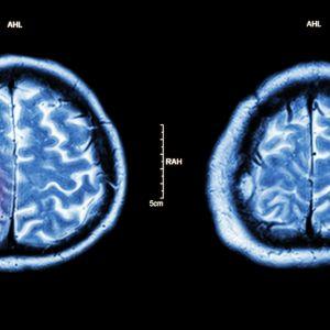 Hjärntumör på datortomografibild.