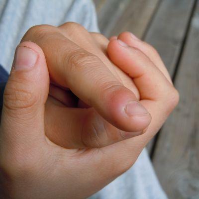 Nageltrång på ett pekfinger.