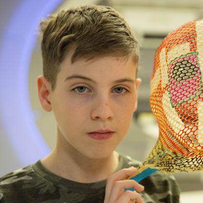 15-vuotiaan Masonin aivokasvainta kutistetaan uudella protonihoidolla. Millintarkan hoidon ajan hänellä on mittojen mukainen kasvomaski.
