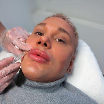 Miehen huulia täytetään kauneusklinikalla.