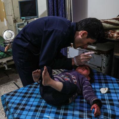 Barn som sårats i granateld vårdades på en klinik i staden Douma, östra Ghouta, på lördagen 3.3.2018.