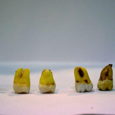 Rivi hampaita