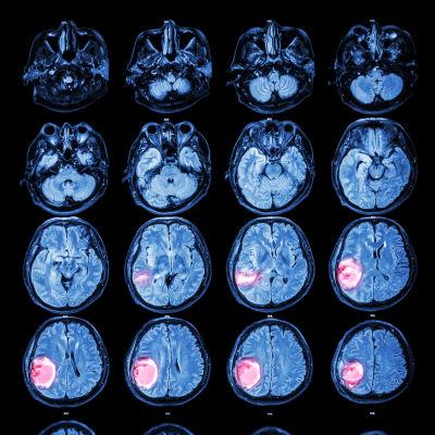 Röntgenbilder av en hjärna med cancertumör.