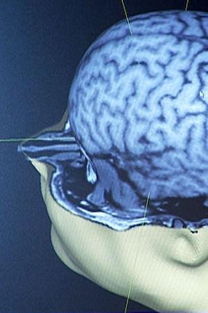Tietokoneen ruudulla kolmiulotteinen kuva aivoista.