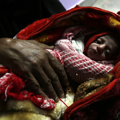 Ett barn som vårdas för kronisk undernäring vid klinik i Sanaa.