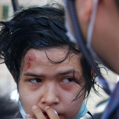 En ung demonstrant med ett sår i pannan