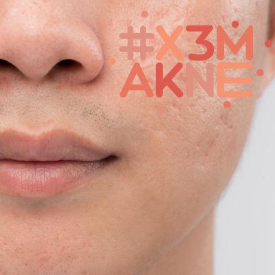 En man som har akneärr i ansiktet.