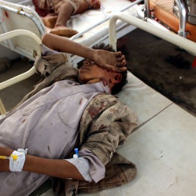 Skadade barn på Röda korsets sjukhus i Saada i norra Jemen
