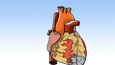 En propp i ett kranskärl förhindrar blodförsörjningen och syretillförseln till den drabbade delen av hjärtat. Om syrebristen blir långvarig tar hjärtmuskeln skada