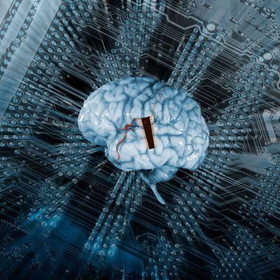 Iso mikrosiru ihmisaivoissa, taustalla tietokoneen piirilevy