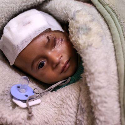 Det nyfödda barnet Karim har skadats två gånger i bombräder i Ghouta. Han har förlorat sitt öga och sin mamma.