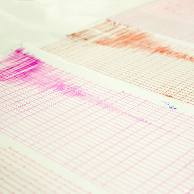 Seismiskt diagram
