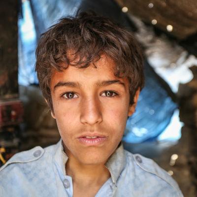 14-åriga Ali har upplevt kriget i Jemen