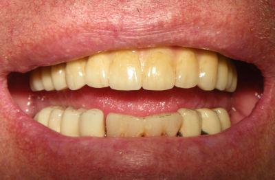 byta ut alla tänder
