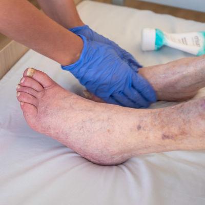 Hoitaja rasvaa vanhuksen jalkoja.