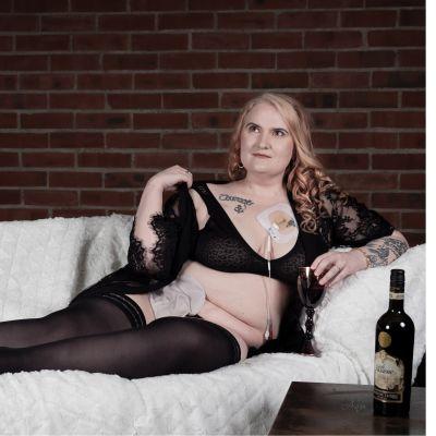 Nainen poseeraa alusvaatteissa sohvalla. Naisella on avannepussi.