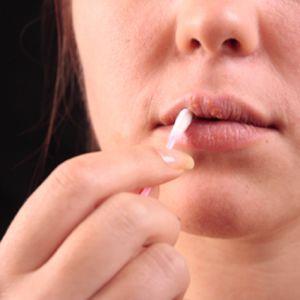 Herpes kan ge blåsor kring munnen