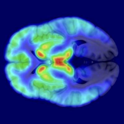 Aivojen opioidireseptorien näkyminen aivokuvissa.