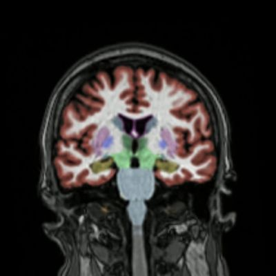 Tietokonetomografiakuva aivoista
