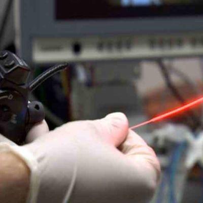laserhoito