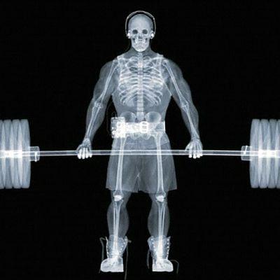 Röntgenkuva painonnostajasta