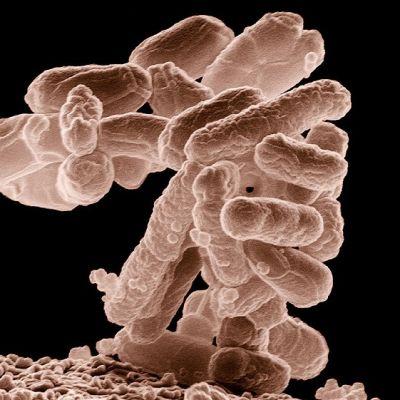 Sauvamaisia bakteereja päällekkäin kasautuneina. Kolibakteerien ryväs näyttää tällaiselta, kun sen suurentaa mikroskoopissa kymmentuhatkertaiseksi.