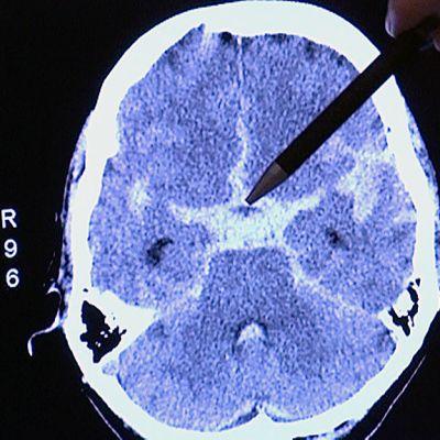 Aivoverenvuotoa tt-kuvassa