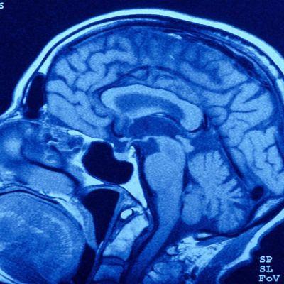 Sammakoita tulee suusta, jos aivoja kuormittaa liikaa.