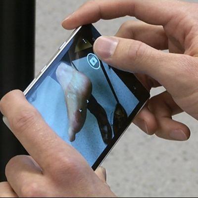 Kännykällä kuvataan ihotautia.