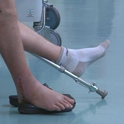 Potilas istuu jalka tikattuna.