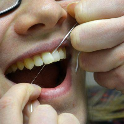 Nainen puhdistaa hammasvälejään hammaslangalla.