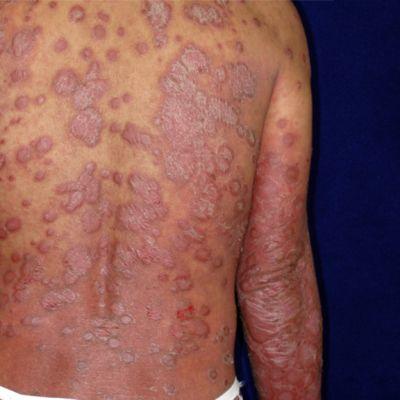 Psoriasista sairastavan henkilön selkä.