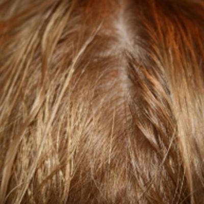 Hiuksen tuppi paljastaa kunnon.