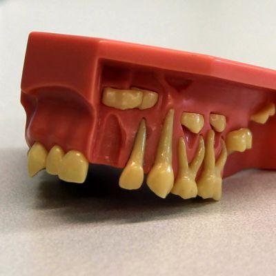 Noin kuusivuotiaan lapsen hampaat. Yläleuka. Maitohampaat ja rautahampaat.