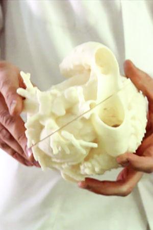 Lääkärin käsissä potilaan sydämestä tehty 3d-malli.