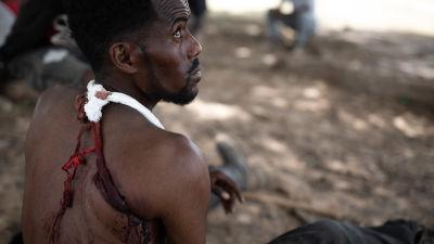 En man som sitter under ett träd med en mitella runt armen och en skottskada i axeln.