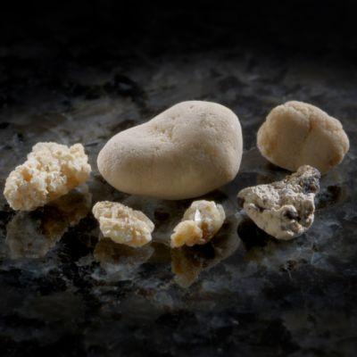 Njurstenar, den största 11 mm, från en och samma patient men från olika tidpunkter.