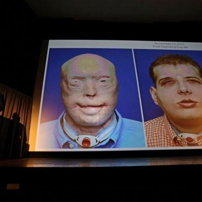 Kuva leikatun miehen kasvoista ennen ja jälkeen leikkauksen.