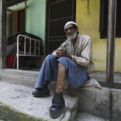 Leprapotilas sairaalan portailla Srinagarissa Intian puoleisessa Kashmirissa.