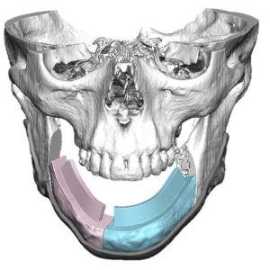 Tietokonemallinnus potilaan kasvoista, kun alaleuka puuttuu. Luusiirteen suunnittelua.