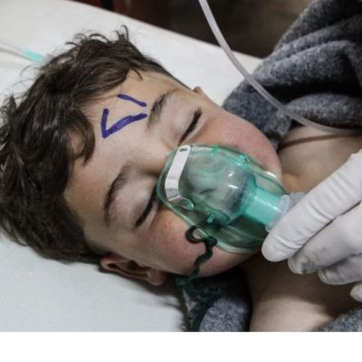 A child receiving treatments after poison gas attack.
