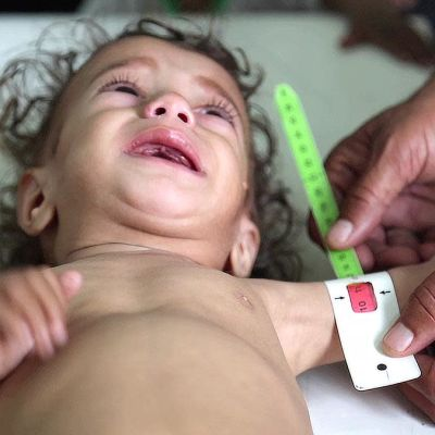 Svältande barn i Jemen